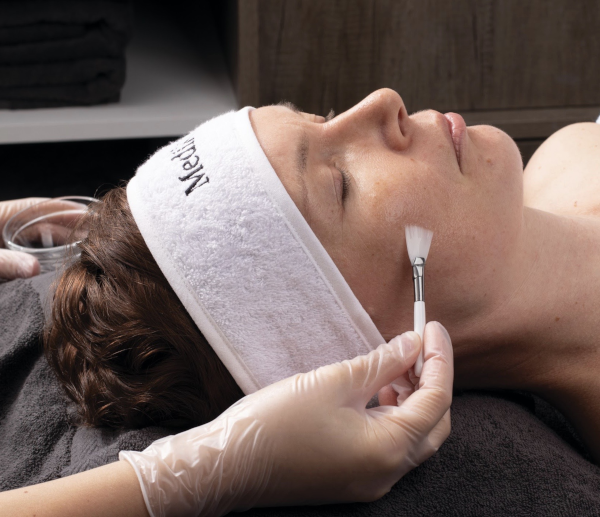 what is chemical peel